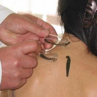 Lääkäri määrää iilimatohoidon sekä sen, kuinka montaa matoa hoidossa tarvitaan.