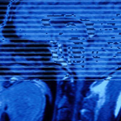 Röntgenkuva ihmisen päästä.