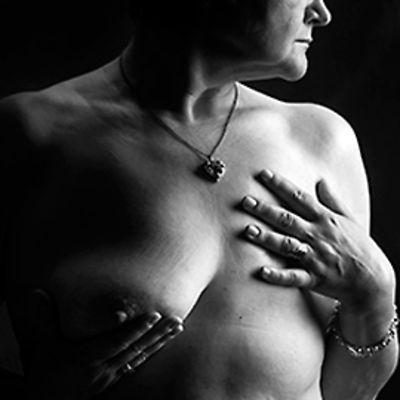 Näyttelykuva rintasyöpään sairastuneesta naisesta