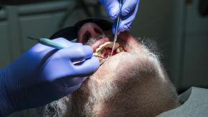 Hammaslääkäri tutkii istrumenteillä potilaan hampaita.