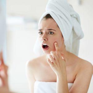 Nuori nainen kauhistuu näppylöitä kasvoissaan.