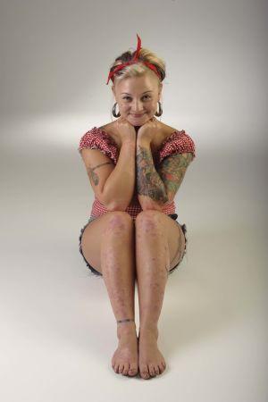 kvinna med psoriasis på huden