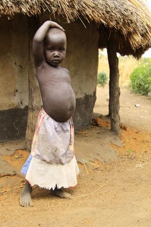 Undernärt barn från Sydsudan