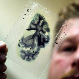 En bit av hjärna.