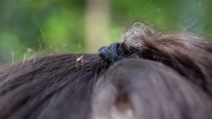 Närbild av en mygga på ett huvud.