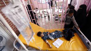 Barn som insjuknat i kolera i Jemen.