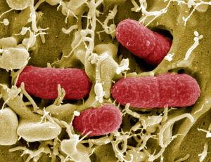 EHEC-bakteereja, Helmholtz Centre for Infection Research