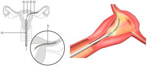 En illustration av hur sterilisering med Essuremetoden görs.