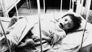 Föräldralöst barn på AIDS-avdelningen på sjukhus i Bukarest, Rumänien 1990