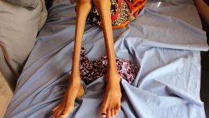 Tolvåriga Fatima Hadi vårdades för sin akuta undernäring på ett sjukhus i Hajjah i slutet av februari.
