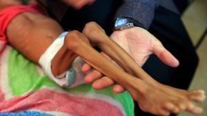 Ett undernärt barn på sjukhuset i huvudstaden Sanaa den 6 oktober. 14 miljoner människor i landet hotas av svält.