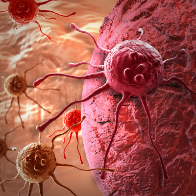 En animerad bild av en cancercell som landat på någon annan cell i kroppen.