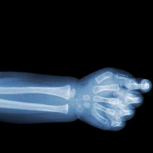 Röntgenbild.