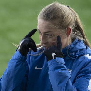 Linda Sällström pekar mot sitt ansikte.