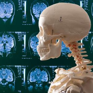 Luuranko ja MRI-kuva.