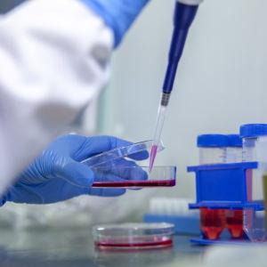 En hand i en blå skyddshandske håller i en petriskål med röd vätska i ett laboratorium. Ur burken tas lite röd vätska med en pipett.