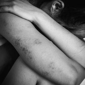 kvinna sitter på huk intill en vägg och gömmer sitt ansikte, hon har blåmärken på armarna