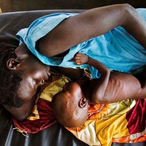 Ett undernärt barn och mamman i Sydsudan.