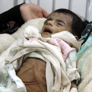 Ett undernärt barn vårdas på ett sjukhus i Jemens huvudstad Sanaa 18.1.2017