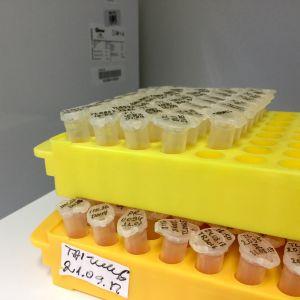 DNA-prov som har analyserats och väntar på att frysas ner igen.