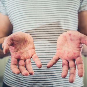 Händer, täckta av höstblåsor.