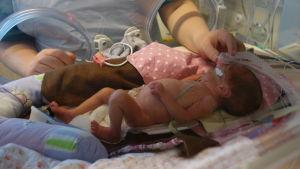 För tidigt född i kuvös