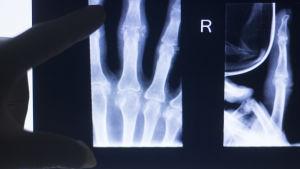 En röntgenbild av en hand och ett finger som pekar mot den.