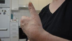 Pirkko Paananen jobbar för att få tillbaka funktionen i vänster hand. Att kunna använda tummen vore toppen!