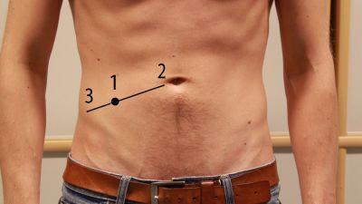svullen mage efter bröstförstoring