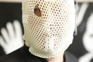 Peter Snickars med mössan på väg till strålbehandling