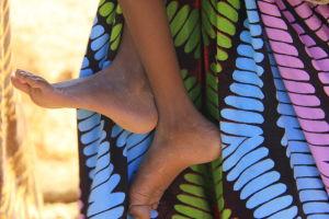 svältande barns fötter