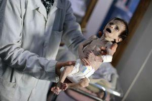 Svältande barn i Ghouta i Syrien.