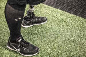 Matti Suur-Hamarin jalat vihreällä tekonurmella, vasemmassa jalassa proteesi.