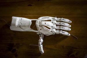 3D-tulostettu käsiproteesi