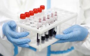 Närbild på blodprovstuber, en person med vit laboratorierock och blå plasthandskar håller i dem.