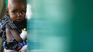 En pojke får behandling på ett sjukhus i Somalias huvudstad Mogadishu.
