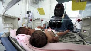 Kroniskt undernärda barn vårdas vid klinik i Sanaa.