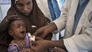 Genom att mäta 10 månader gamla Aasiyas arm kan man fastställa om hon är undernärd.