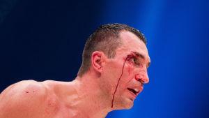 Volodymyr Klytjko, i matchen mot Tyson Fury, november 2015.