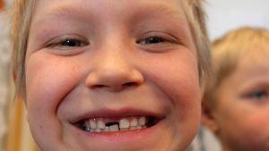 Eskaripojan hymy, hammas lähtenyt