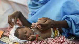 Ett undernärt barn i Senegal.