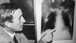 Barnardin veljekset tekivät ensimmäisen onnistuneen sydämensiirron Kapkaupungissa vuonna 1967.