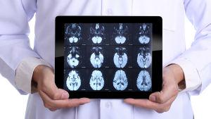 Läkare håller upp en pekdator med bilder av en skannad hjärna.