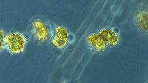 mikroskopbild av plankton