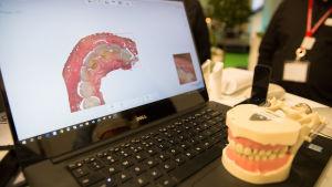 Kuvassa 3D tulostettu kuva ihmisen hampaista.