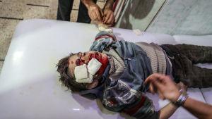 Ett sårat barn vårdas på kliniken i Douma på lördagen.