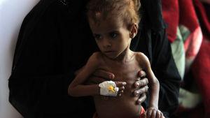 Utmärglat barn i Jemen.