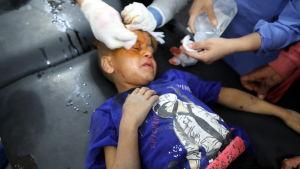 ett barn som skadats i en turkisk flygräd får vård på ett sjukhus i staden Tal Tamr