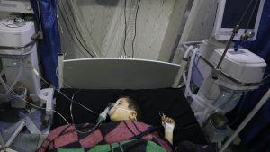 Ett syriskt barn som skadats vid en flygräd. Barnet vårdas på ett sjukhus i Ariha i provinsen Idlib. 30.1.2020.