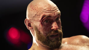 Tyson Furys ögonbryn fick sys med 40 stygn.